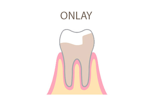 Dental-office-onlay