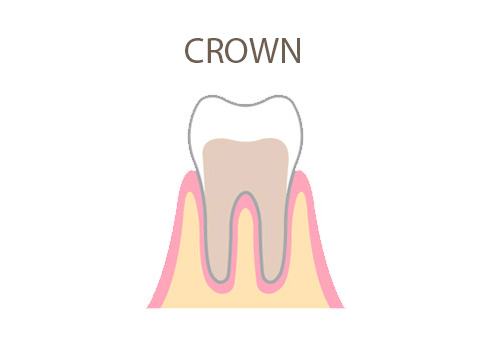 dental-office-crown