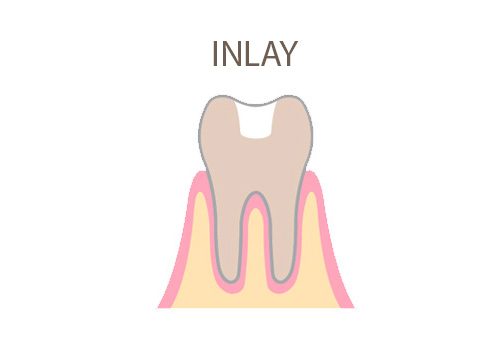 dental-office-inlay