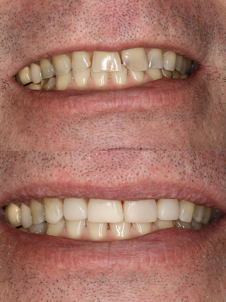 composite-vaneers-morgan-crossing-dental